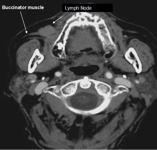 tragus lymph node