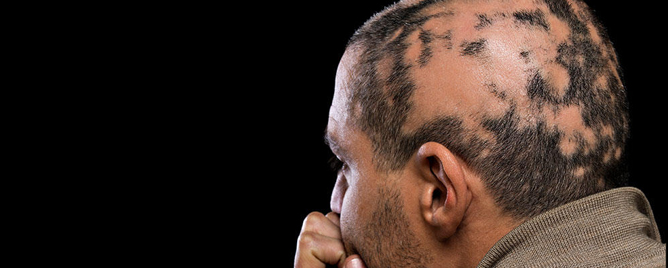 <br>An emerging treatment option could provide effective therapy for patients with alopecia areata, atopic dermatitis and vitiligo..... &lt;a href=&#39;https://www.aad.org/media/news-releases/new-treatment-options&#39; target=&#39;_blank&#39;&gt;More&lt;/a&gt;